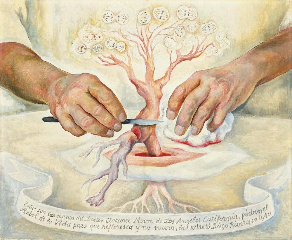 Diego Rivera, The Hands of Dr. Moore, Figure, Diego Rivera, kanvas tablo, canvas print sales